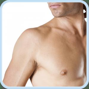 depilacion laser hombros