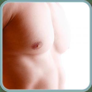 Depilación láser en el pecho